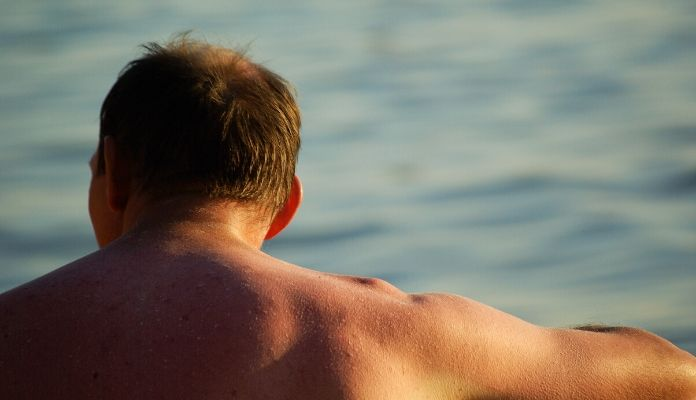 Skin cancer risks from sun exposure