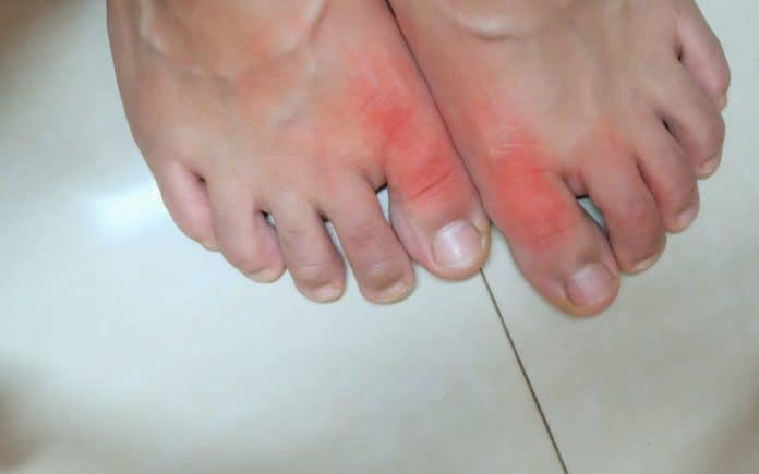 Gout on the toes